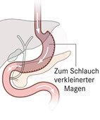 Operative Verkleinerung des Magens zu einem Schlauchmagen