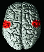 Spitzt ein Patient die Lippen, werden diese Hirnregionen aktiv