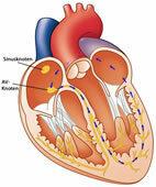 WPW-Syndrom: Schematische Darstellung einer kreisenden Erregung (blau) im Herz. Zum Vergrößern auf die Lupe oben links klicken!