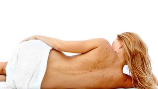 Frau mit Leberflecken auf dem Rücken