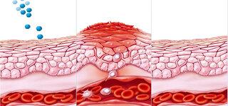 Leukozytoklastische Vaskulitis
