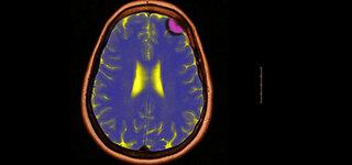 MRT Gehirntumor