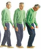 Charakteristische Veränderung des Gangbildes bei Morbus Parkinson ohne Therapie