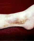 Solche bräunlichen Hautveränderungen am Knöchel können einem offenen Bein voraus gehen