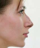 Viele empfinden einen Nasenhöcker als Schönheitsmakel