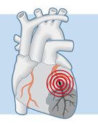 Beim Verschluss eines Herzkranzgefäßes ist der nachfolgende Bereich des Herzmuskels (hier grau) mangelhaft durchblutet