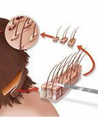Bei der FUT-Technik wird ein Hautstreifen mit Haarwurzeln entnommen