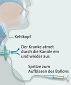 Für die Beatmung nach einem Luftröhrenschnitt verwenden Ärzte spezielle medizinische Ausrüstung