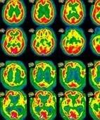SPECT-Aufnahmen des Gehirns: Die Anreicherung des Tracers wird farbig dargestellt