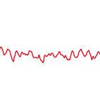 Im EKG zeigt sich Kammerflimmern mit unregelmäßigen Zacken
