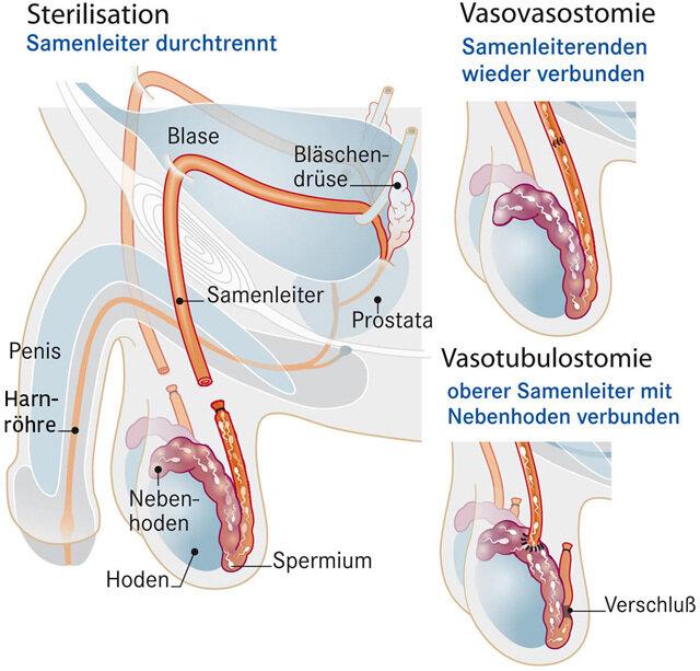 Sterilisation des Mannes: Die Vasektomie | Apotheken-Umschau