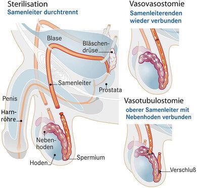 Spermiogramm nach vasektomie