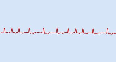 EKG-Kurve bei Vorhofflimmern