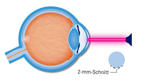 Infografik Augen lasern 3