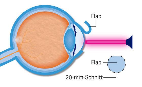 Infografik Augen lasern 2