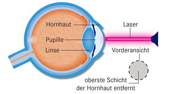 Infografik Augen lasern 1