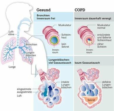 Eine COPD kann Bronchien und Lungenbläschen betreffen