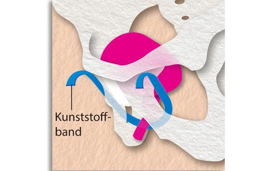Infografik Blasenschwäche: Harnblase mit Harnröhre und Kunststoffband