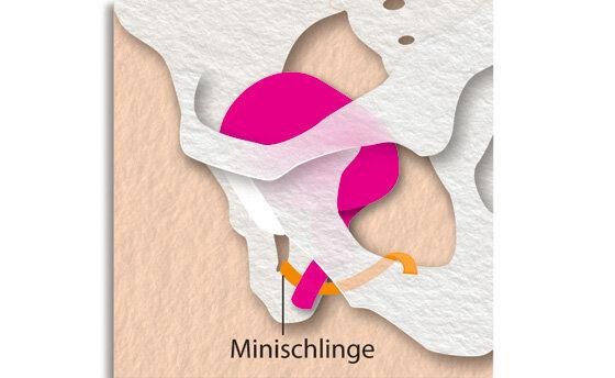 Infografik Blasenschwäche: Harnblase mit Harnröhre und Minischlinge