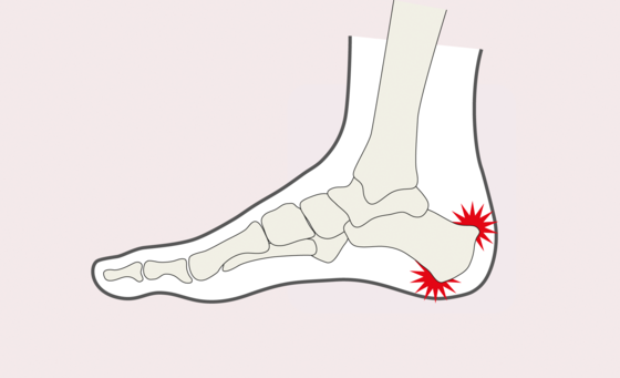 Fußbeschwerden