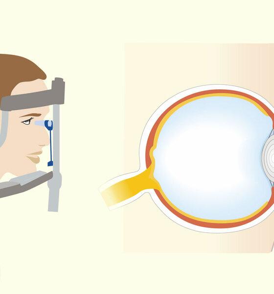 Augeninnendruck-Messung