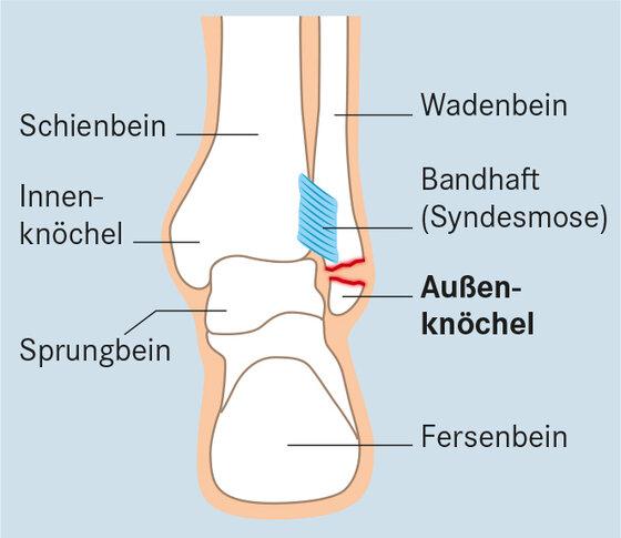 Knöchelbruch: Weber-Fraktur A