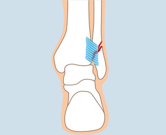 Knöchelbruch: Weber-Fraktur B