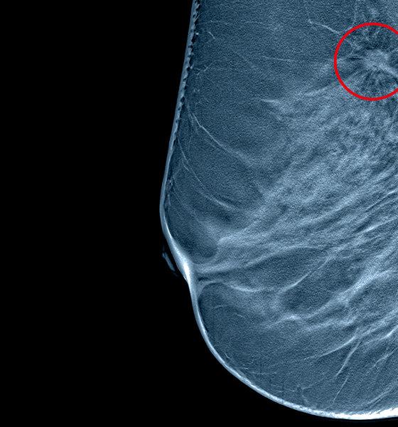 S/W Tomographie einer Brust mit Tumor