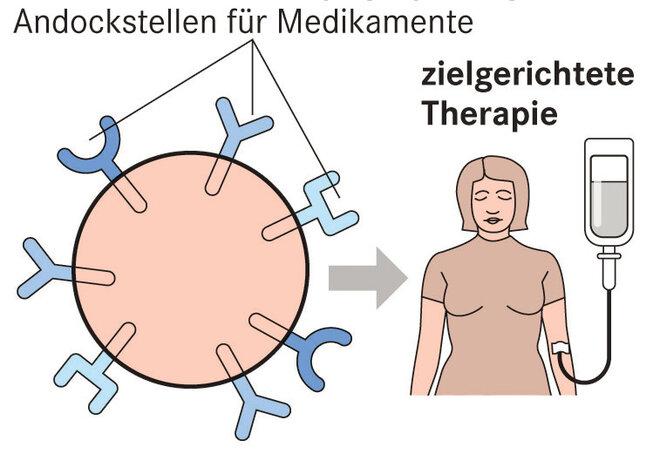 Infografik Brustkrebs zielgerichtete Therapie