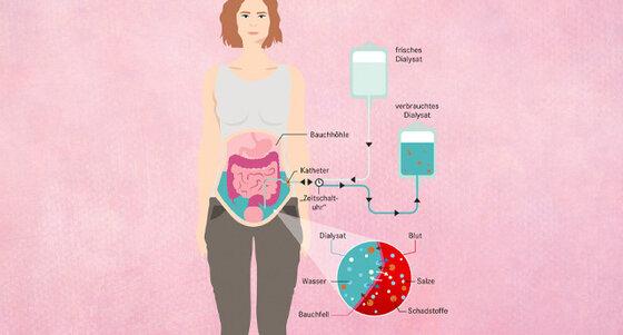 Infografik Dialyse