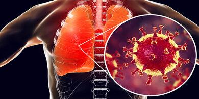 SARS-CoV-2 befällt die oberen und unteren Atemwege - aber nicht nur diese!
