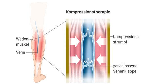 Infografik: Kompressionstherapie