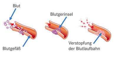 So funktioniert die normale Blutgerinnung.
