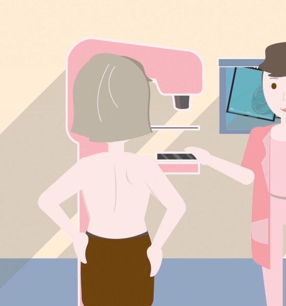 Illustration Mammographie Untersuchung
