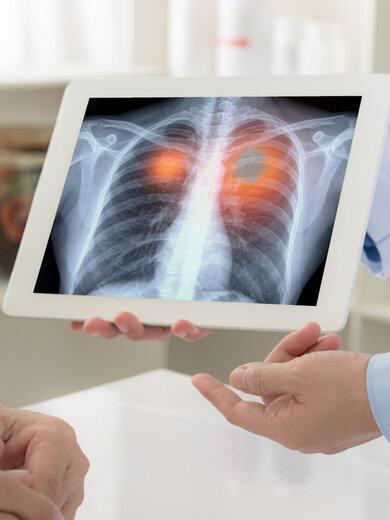 Infektionsherd Lunge: Corona kann sich dort sogar mehrmals festbeißen