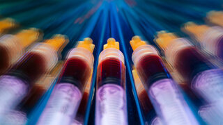Coronavirus COVID-19_Antikörpertests Studie Spritzen