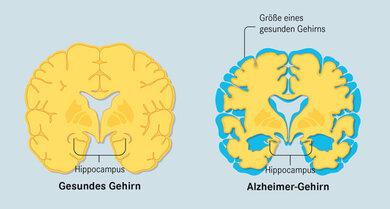 Verhängnisvoller Schwund: Bei Morbus Alzheimer gehen Hirnzellen  zugrunde. Forscher und Firmen suchen nach Wegen, um diesen Prozess zu stoppen. Als Erstes sterben Nervenzellen im Hippocampus ab. Dieser Bereich  ist für das Gedächtnis wichtig. Vergesslichkeit ist daher der Vorbote dieser Demenzerkrankung. Am Ende ist das Gehirn etwa um ein Fünftel geschrumpft.