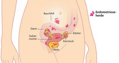 Das Bild zeigt verschiedene Endometriose-Herde im Unterleib.