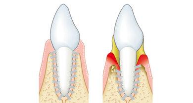 Das Bild zeigt: Der linke Zahn ist gesund. Der rechte Zahn hat Parodontitis. Deshalb ist das Zahnfleisch gerötet und der Zahnhals liegt frei.