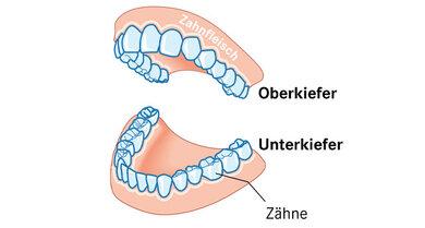 Das Bild zeigt den Zahnhalte-Apparat.