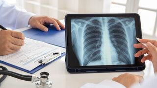 Coronavirus Ambulanz für Spätfolgen nach Covid-19 Arzt Ärzte Krankenhaus Besprechen Aufnahme Röntgen IPad Lunge