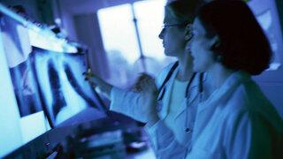 Röntgenbild: Die Röntgenaufnahme der Lunge wird von Ärzten ausgewertet