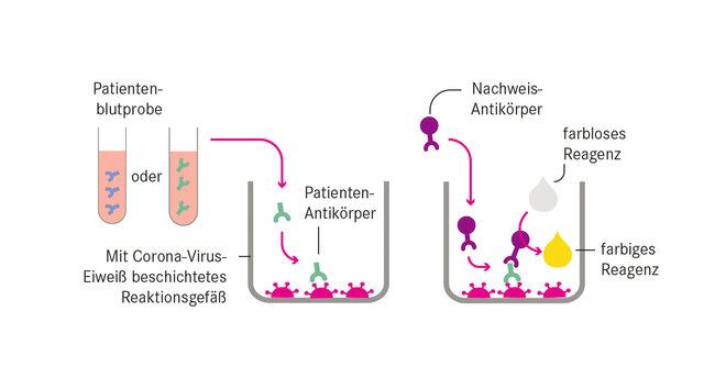 Corona, SARS-CoV-2, Nachweis, Antiköper, Erbgut, RNA, Abstrich, Blut, ELISA, Reagenz, IgA, IgM, IgG, Infektion, Verlauf, Symptome, Schleimhaut