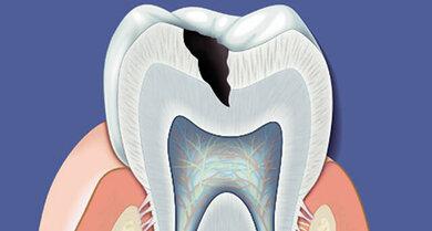 Das Bild zeigt einen Zahn mit Karies.