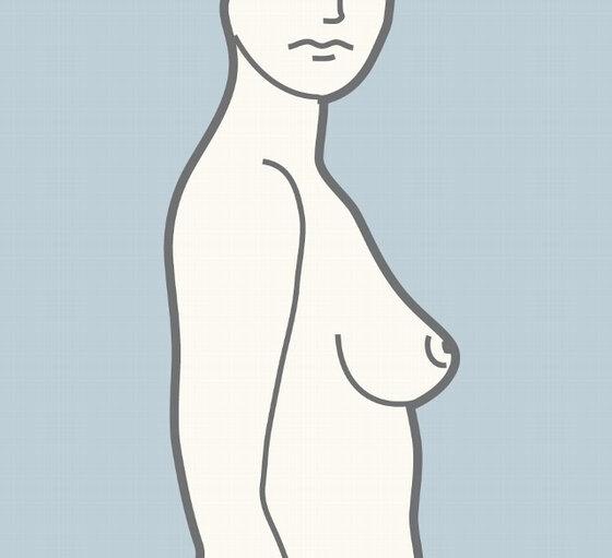 Brustuntersuchung
