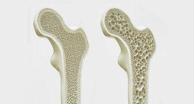Das Bild zeigt: Der linke Knochen ist gesund. Der rechte Knochen hat Knochenschwund.