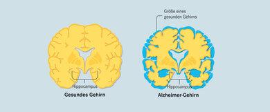 Vergleich von gesundem Gehirn und Alzheimer-Gehirn