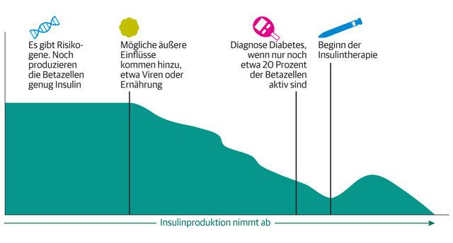 Infografik: Den Ursachen auf der Spur Diabetes Typ 1
