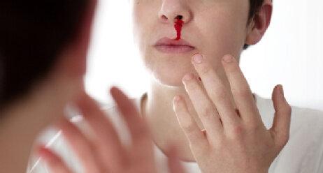 Frau hat Nasenbluten