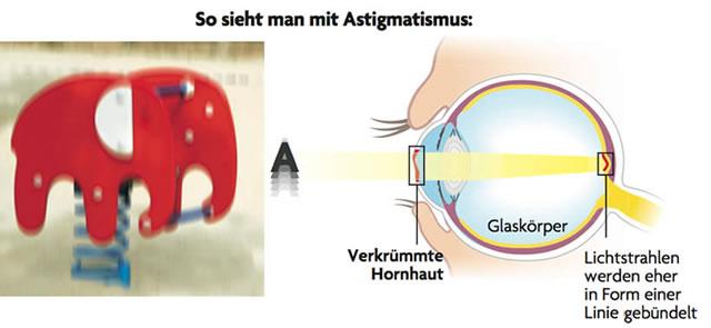 So sieht man mit Astigmatismus (Schematische Darstellung)